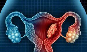 U nang buồng trứng có dấu hiệu gì để nhận biết