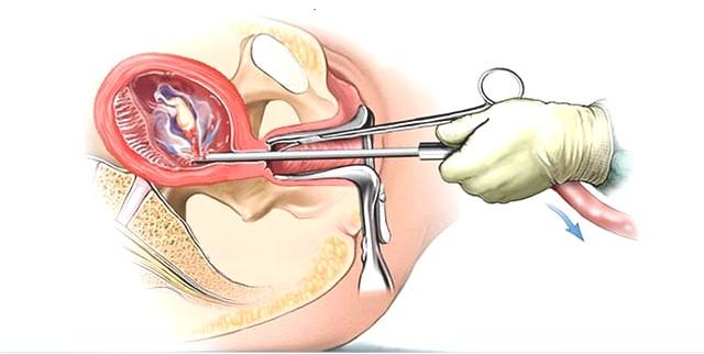 Phá thai 2 tháng bằng phương pháp nào