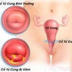 Sa tử cung là gì? Dấu hiệu và cách điều trị sa tử cung chính xác nhất