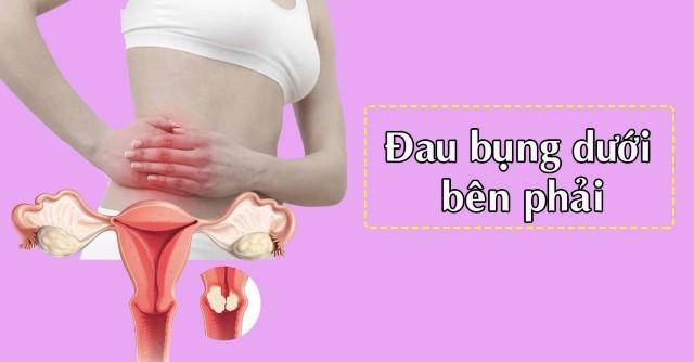 cung-tim-hieu-ve-dau-bung-duoi-ben-phai