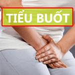 Đi tiểu buốt ở nữ: Nguyên nhân & Cách chữa trị dứt điểm bệnh này