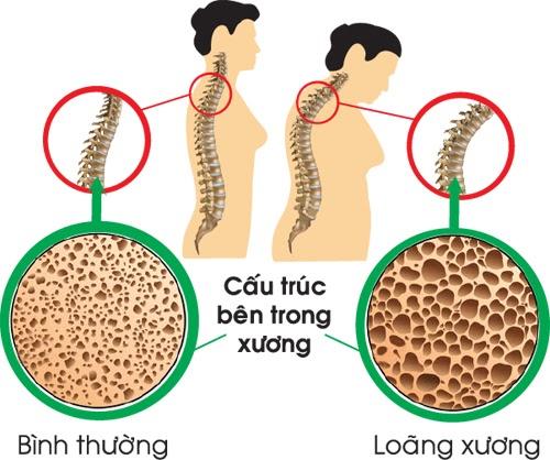 Bệnh loãng xương là gì? Nguyên nhân, triệu chứng và cách điều trị