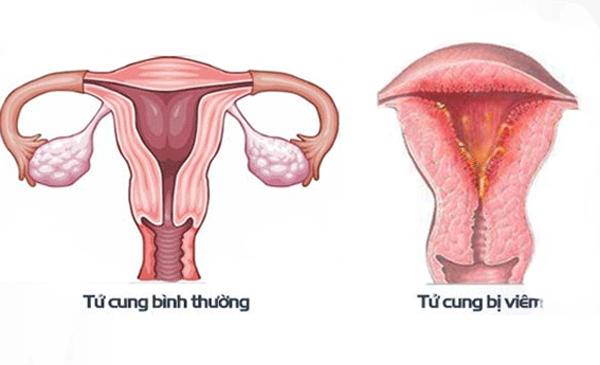 Viêm nội mạc tử cung có thể là nguyên nhân khiến quan hệ bị đau rát
