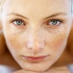 Tổng hợp những cách trị nám da mặt và tàn nhang hiệu quả